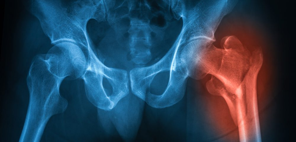Hip, Knee Replacement Surgeries More Frequent in Older AS Patients than the General Population