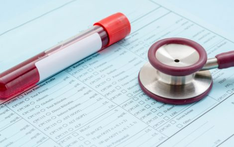 2 New Biomarkers May Help Detect Axial SpA Risk in IBD Patients, Study Finds