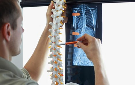 Gender-specific Predictors of AS Spinal Radiographic Progression Identified in 5-Year Study