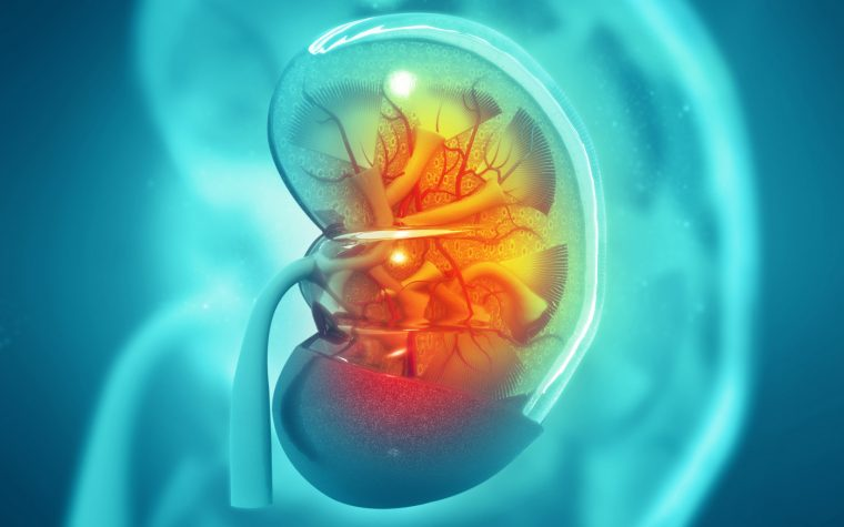 Kidney complications